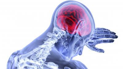 A stroke ma a felnőttkori rokkantság egyik vezető oka, emellett a harmadik leggyakoribb halálok - Fotó: pixabay.com